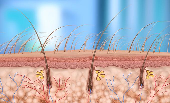 Ruxolitinib May Help Those With Alopecia