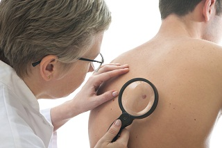 Research Targets Genetics of Melanoma