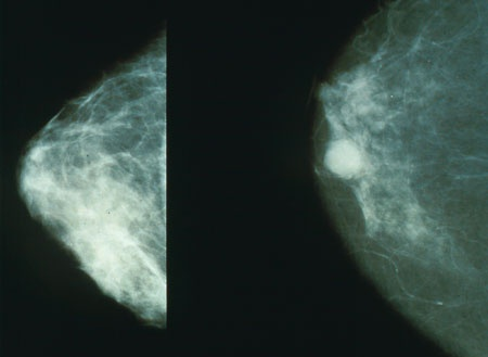 DOST Imaging May Predict Breast Cancer Response to Chemotherapy