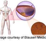 Selenium and/or Vitamin E Do Not Prevent Bladder Cancer