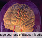 Diabetes Linked to Cognitive Decline in Older Adults