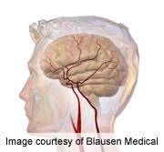 Psychological Distress Increases Cerebrovascular Death Risk