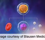 Ibrutinib Promotes Remission in Chronic Lymphocytic Leukemia
