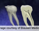 Inverse Link for Dental Caries, Head/Neck Squamous Cell CA
