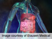 Adjuvant Radiochemotherapy Has Lasting Benefit in Gastric Cancer
