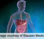 Follow-Up Biopsies in Celiac Disease Help ID Lymphoma Risk