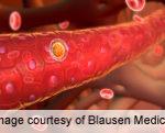 Acute Myeloid Leukemia Risk Factors ID'd in Texas Adults