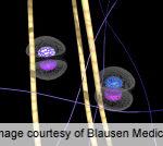 Nonsentinel Lymph Nodes Key Factor in Melanoma Prognosis