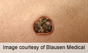 Common Therapies for Basal Cell Carcinoma Offer Similar Survival