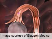 Ovarian Grafts Restore Endocrine Function Long Term