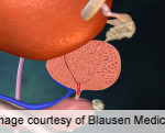 Prostate Size Predicts Gleason Score Upgrading