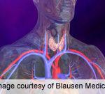 Selumetinib Ups Radioiodine Uptake in Thyroid Cancer