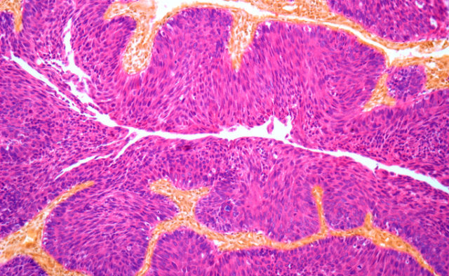 Several promising drugs have been approved for the treatment of bladder cancer within the phase year