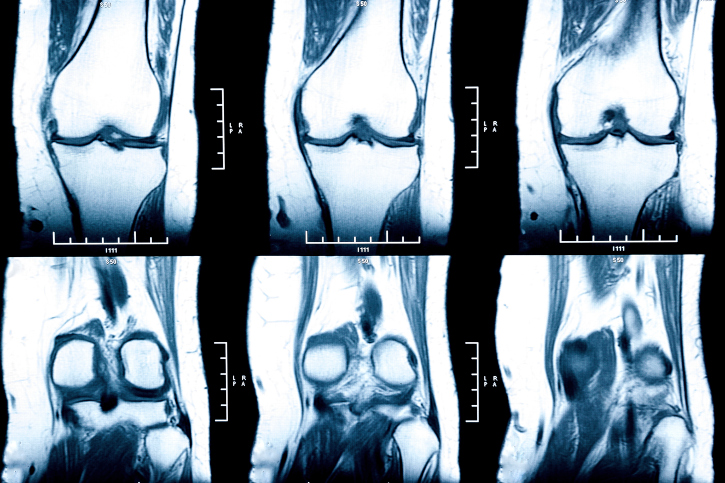 Denosumab has robust clinical efficacy in the treatment of patients with giant cell tumor of bone.