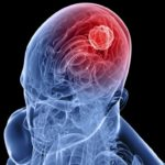 Intra-arterial Chemo Beneficial for Recurrent Glioblastoma