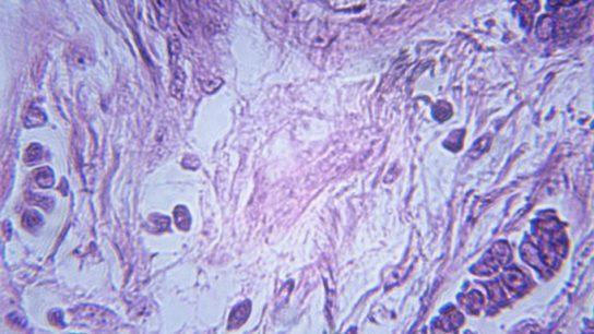 Obesity Ups Mortality in Premenopausal ER+ Breast Cancer