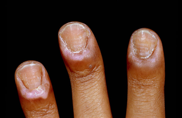 Paronychia is an infection of the soft tissue around a finger or toenail leading to inflammation and swelling. It is a known toxicity of anti-cancer therapy with epidermal growth factor receptor-inhibiting (EGFR) agents. These drugs may affect the skin's epidermal receptors and cause paronychia. Onset is typically within 2 months of initiating an EGFR agent, with reported incidence rates ranging between 6% and 50%.