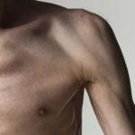 Cancer Cachexia: No Longer Simply Involuntary Weight Loss