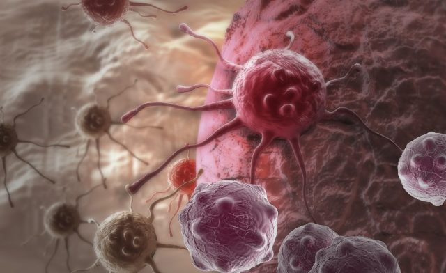 Cancer of Unknown Primary: Molecular Profiling May Direct Treatment