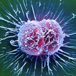 Cervical cancer cells / Science Source