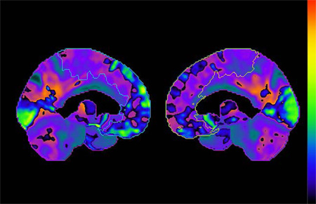 Researchers Find New Insight Into Brain Cancer and Parkinson's Disease