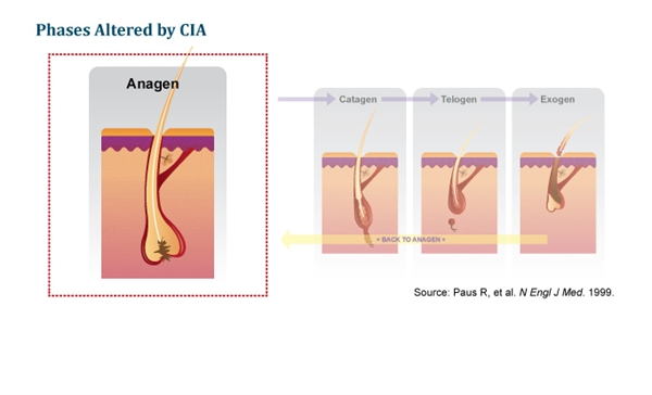The anagen phase is primarily affected in CIA, which is thought to result from the disruption of matrix cells proliferation and Pohl-Pinkus constrictions, which is characterized by diminished follicle function.3