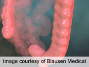U.K. Criteria May Better Stratify for Colorectal Neoplasia Risk