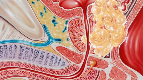 GU Symposium Report: New Drug Combinations Improve Prostate Cancer Outcomes