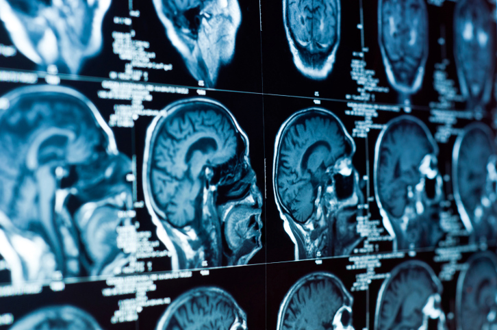 Phase 2 studies show in vitro effectiveness in various glioblastoma multiforme cell lines.