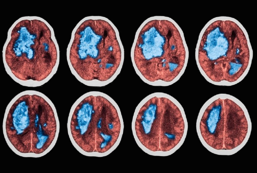A stroke is the most frequent neurologic complication of APS, and produces the most serious consequences.4 They can occur in any vascular region of the brain, and women are more likely to be affected than men. Patients who are APL-positive also tend to be younger compared with other patients with stroke who are APL-negative, with at least 20% of these strokes occurring in people <45 years. People who have APS secondary to SLE may be at higher risk for stroke.6 The risk for recurrence in primary APS may be higher, but this is not well established.4,5