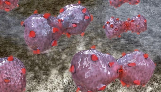 Protein Test Predicts Survival Benefit of Chemo vs. Erlotinib