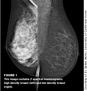 Spectral Mammography The New Color Of Breast Cancer Diagnosis