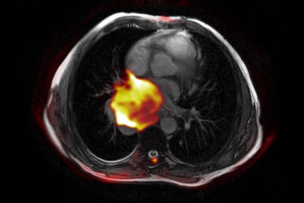 The PET/CT fusion image shows non-small cell lung cancer (NSCLC) of the right lung, with an early stage of another type of cancer showing up in the yellow/pink highlighted area. PET/CT fusion imaging is a multimodality technology that allows the correlation of findings from two concurrent imaging modalities.