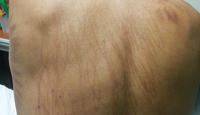 Case Study: What's Causing this Linear Rash in a Patient with