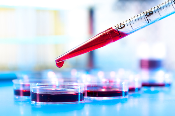 A number of studies have attempted to determine whether multiple myeloma is directly linked to autoi