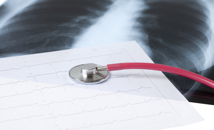 A Growing Concern Over Increased Cardiovascular Disease Risk in Breast Cancer Survivors