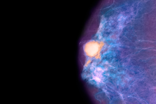 Colored mammogram showing a malignant breast tumor (orange area) above the nipple. The tumor is a colloid carcinoma (adenocarcinoma) that grew from the epithelial lining of the mammary lobules.