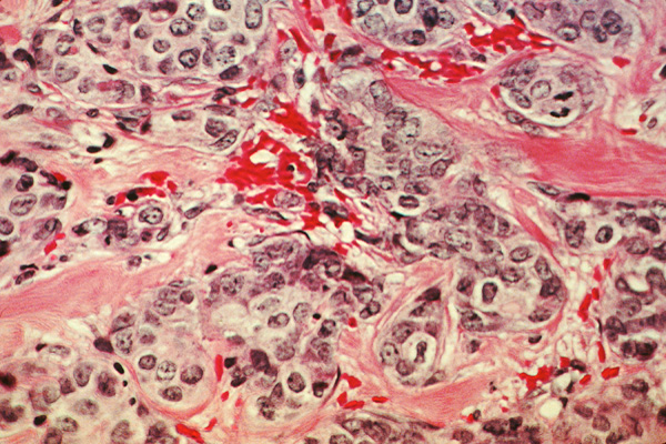 Breast cancer histology slide—cancer cells are depicted in black, and the pink areas are the normal connective tissue.