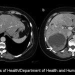 Postembolization Syndrome Following Transarterial Chemoembolization