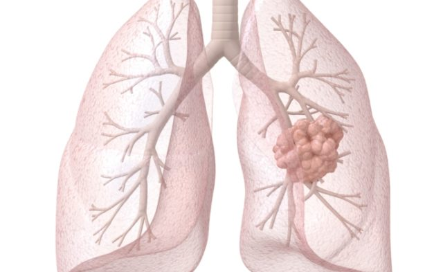 For Advanced Non-Small Cell Lung Cancer (NSCLC), Nintedanib Improves Overall Survival Without Reduci