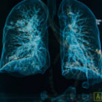 Patients with single organ metastatic stage 4 non-small cell lung cancer, especially those with low