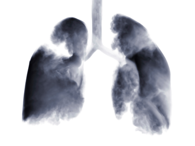 How can clinicians help patients with lung cancer manage possible feelings of guilt and shame regard