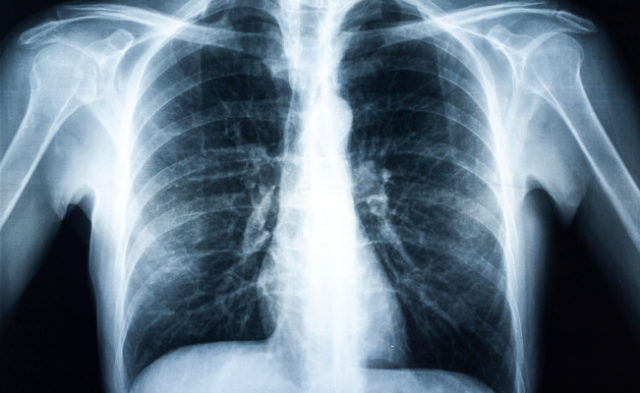 Belagenpumatucel-L as maintenance therapy for non-small cell lung cancer may benefit patients.