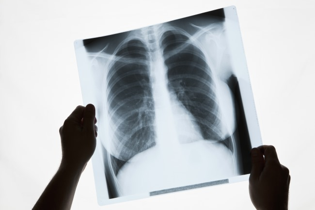 Management of malignant pleural effusions should be tailored to the particular patient, depending on