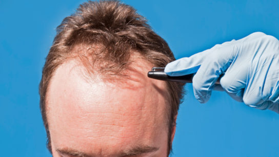 A recent study links male pattern baldness with elevated risk of aggressive prostate cancer.