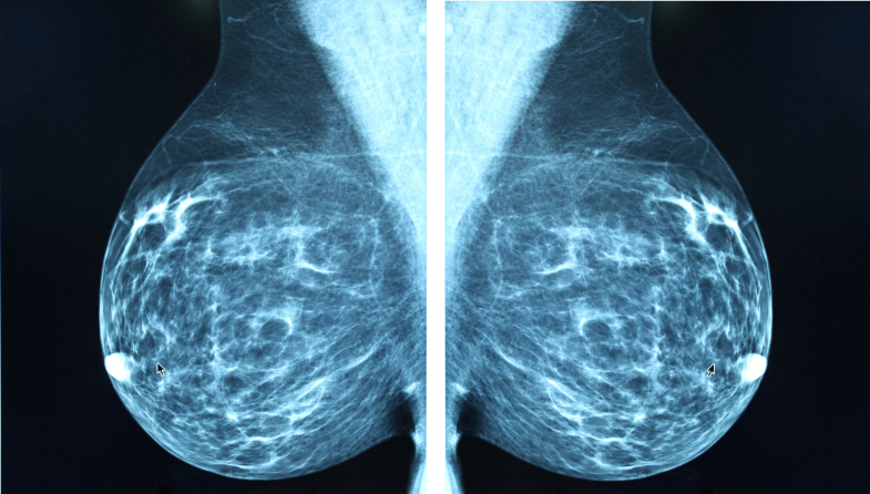 Women with mucinous or tubular/cribriform breast cancer had better outcomes than those with other hi