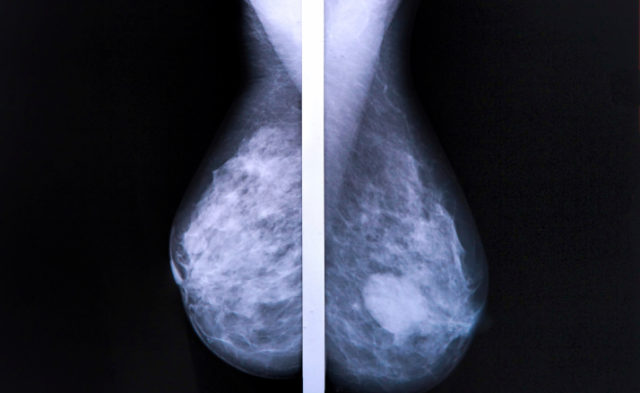 PAM50 risk of recurrence score and intrinsic subtype may be able to identify node-positive breast ca