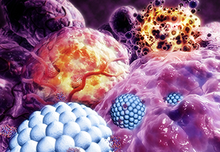 Nanoparticles (blue) destroying tumor (purple), causing their destruction (orange) / Science Source