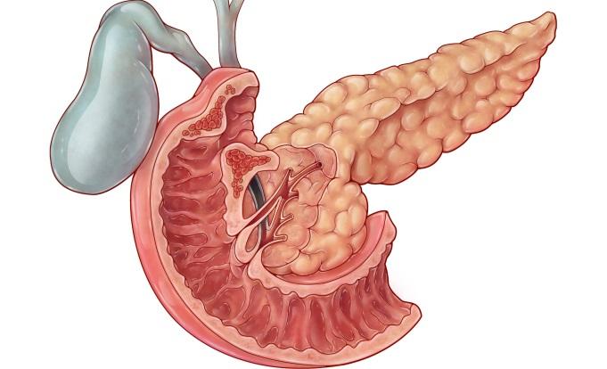 Ampullary Adenocarcinoma: A Rare Malignancy