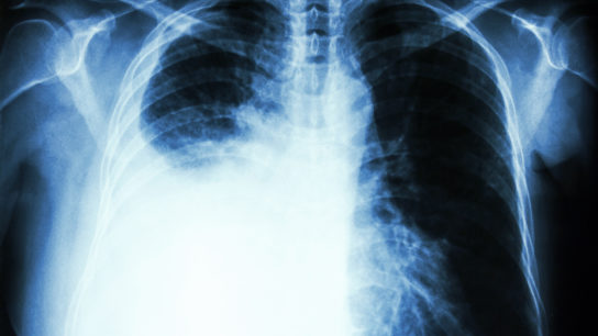 Pleural effusion caused by lung cancer.